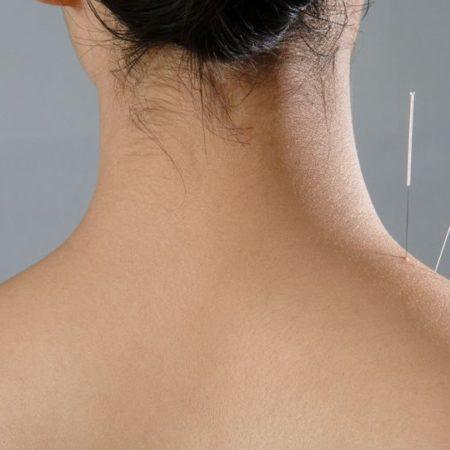 Cinq points d'acupuncture pour le printemps