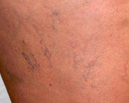 Traitements non invasifs de l'insuffisance veineuse chronique